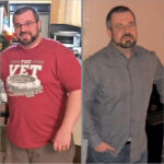 Options Medical Weight Loss Success Story: Jeff Fisher